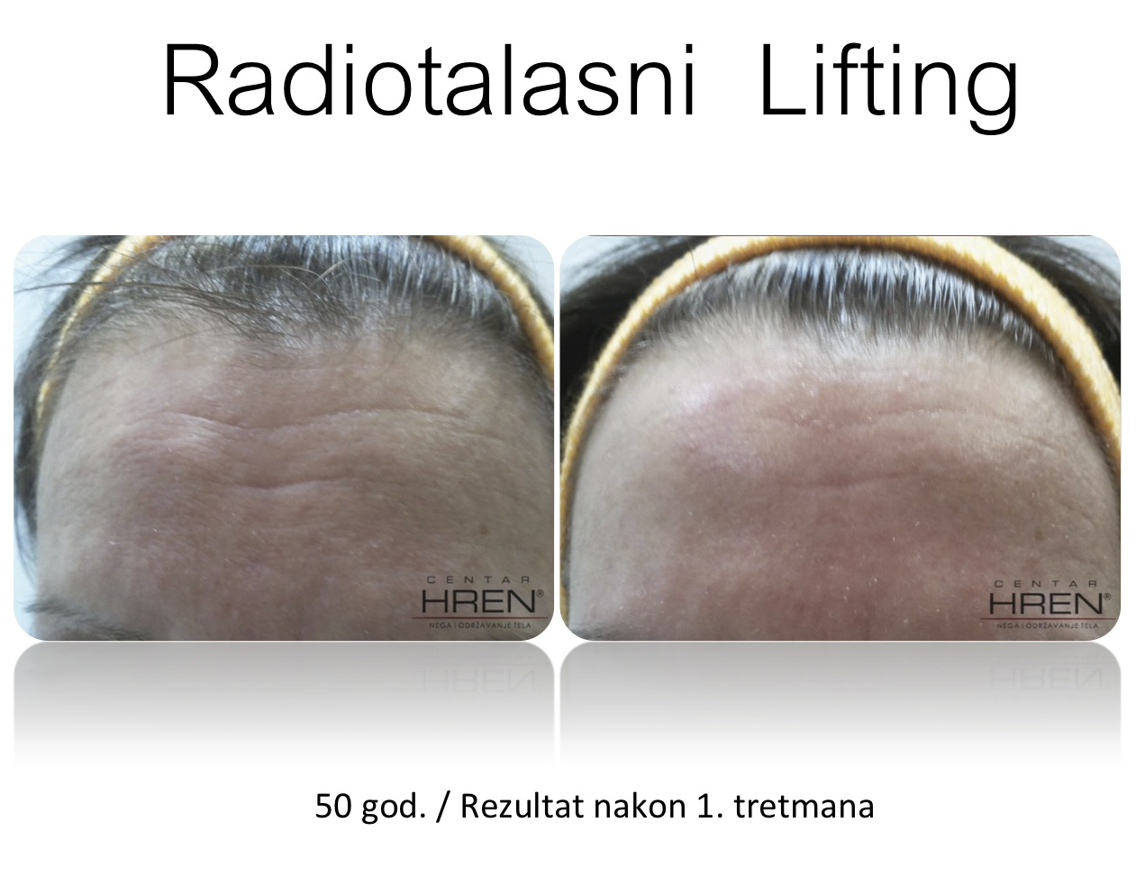 Radiotalasni Lifting1